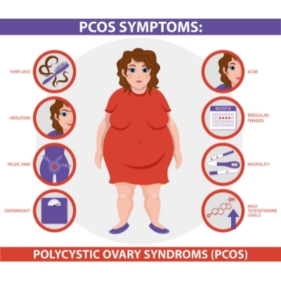 polycystic ovary syndrome symptoms infographic