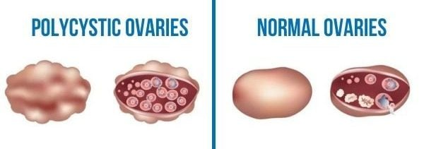 Polycystic Ovaries to normal ovarian comparison