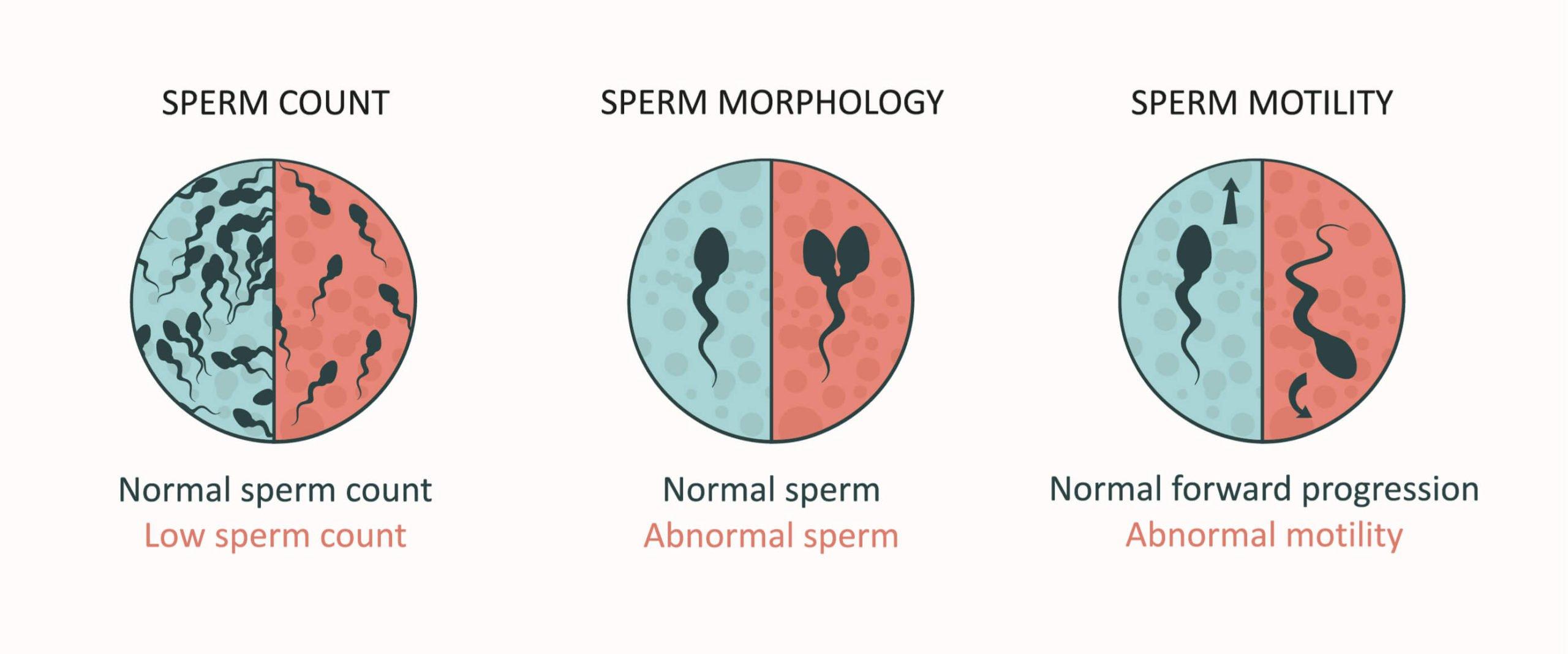 normal sperm count