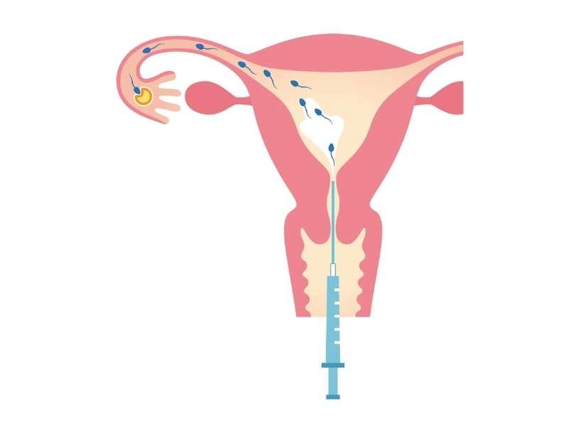iui intrauterine insemination fertility procedure